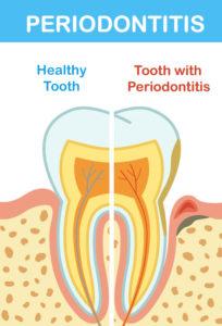 Periodontitis Infographic